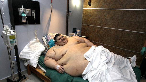 В Мексике прооперировали самого тяжелого человека в мире