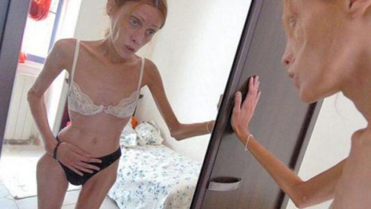 Медики назвали истинную природу анорексии