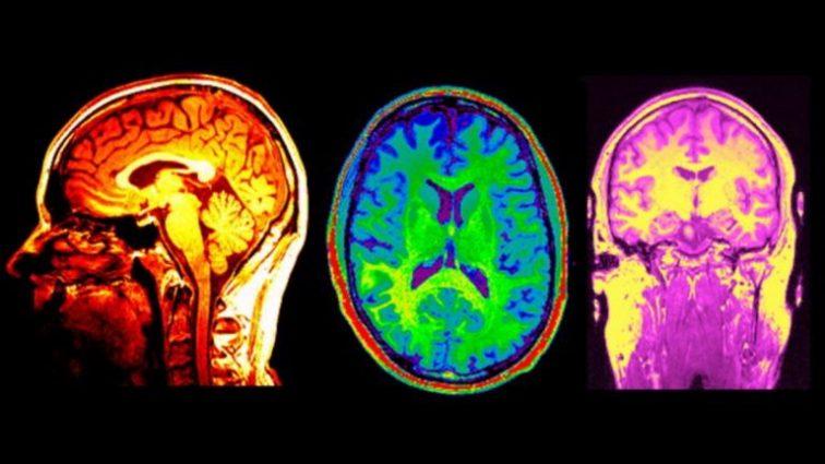 Учёные обнаружили связь между повреждениями в мозге и властью