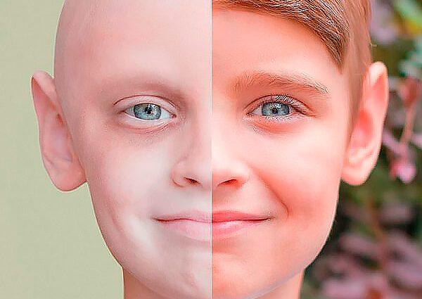Страшная статистика: сколько украинцев ежегодно заболевают раком и как уберечься